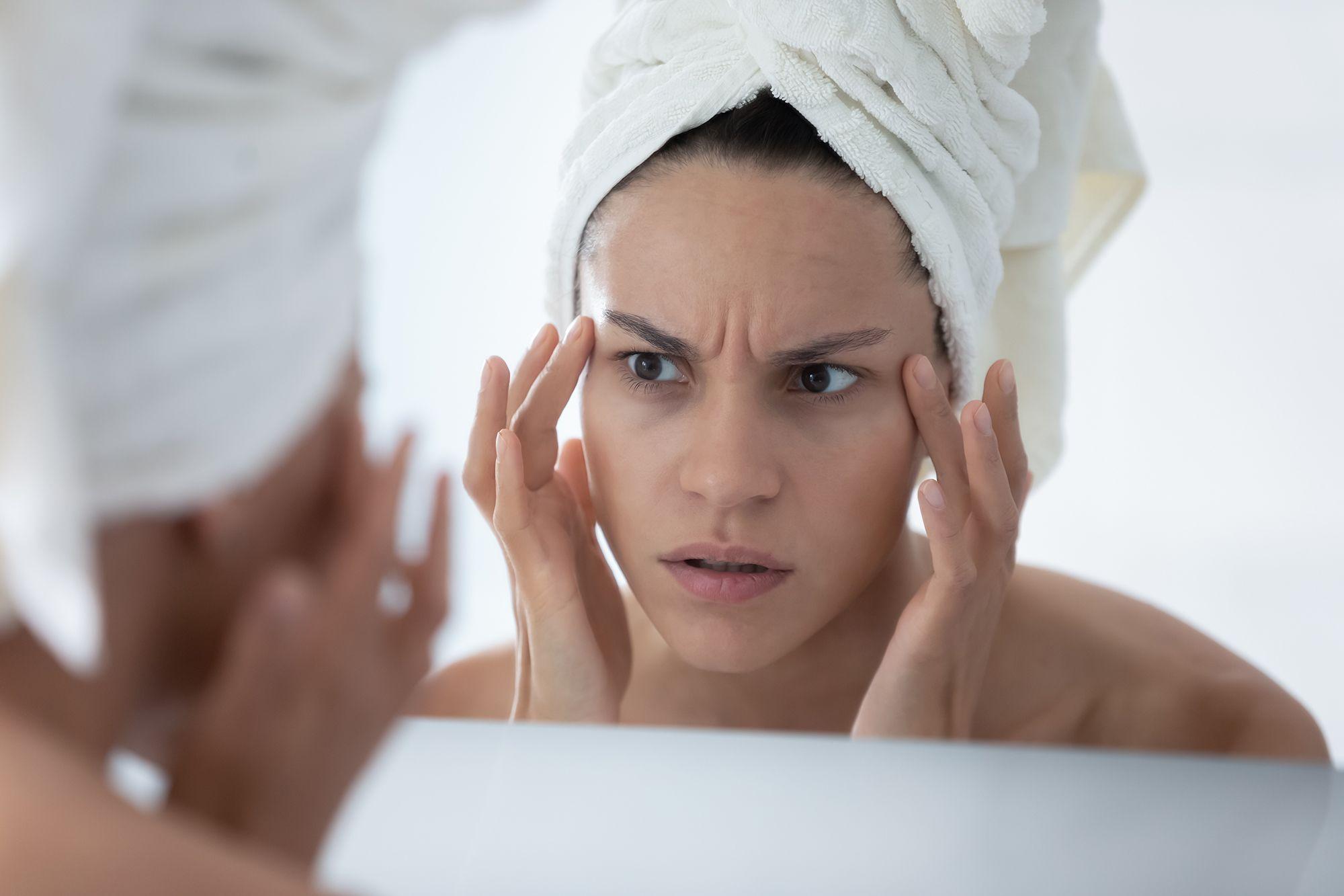 Stres lahko pusti posledice na koži.