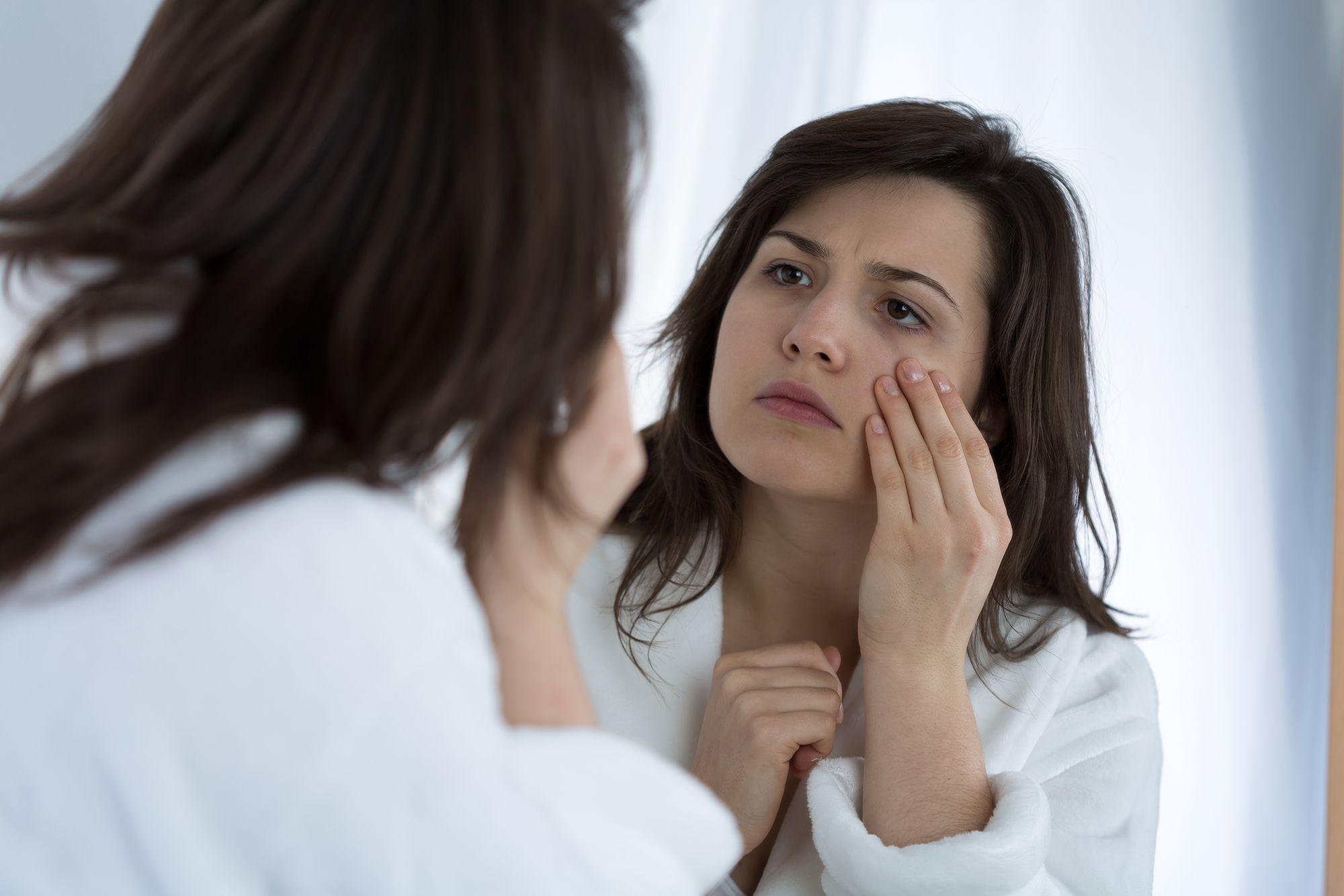 Izsušena koža, akne, podočnjaki, poslabšanje kožnih bolezni so lahko znaki stresa.